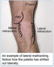 lateral tracking in the patella