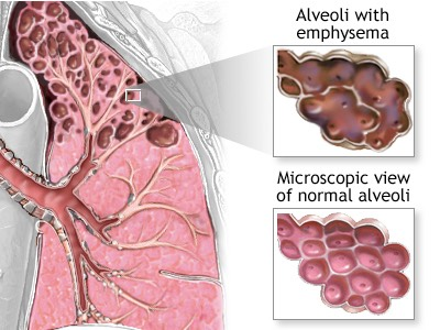 aveoli, emphysema, COPD, lungs