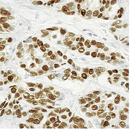 breast carcinoma tissue stained for estrogen receptor